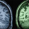 Според данни от ново изследване намаляването работоспособността на мозъка е свързано не само с възрастта, но и с човешките гени. До този извод са стигнали учените от Тексаският биомедицински изследователски […]