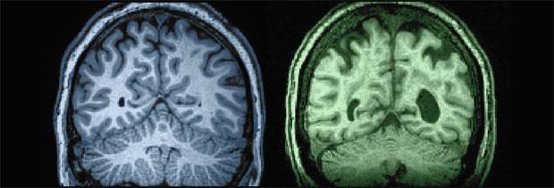 Бяла материя в състава на човешкият мозък